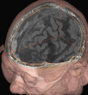 CT検査イメージ1